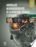 Abordajes Neuroquirúrgicos de la Patología Craneal Y Cerebral