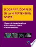 Ecografía Doppler en la hipertensión portal