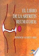 El libro de la artritis reumatoide