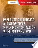Implante Quirúrgico de Dispositivos Para La Monitorización del Ritmo Cardíaco
