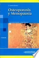 Osteoporosis y menopausia / Osteoporosis and Menopause