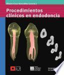 Procedimientos clínicos en endodoncia