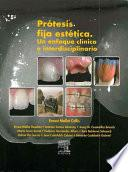 Protesis Fija Estetica